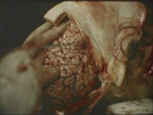 Stan Brakhage - The Act Of Seeing With One's Own Eyes (1971)[(027970)06-27-18]