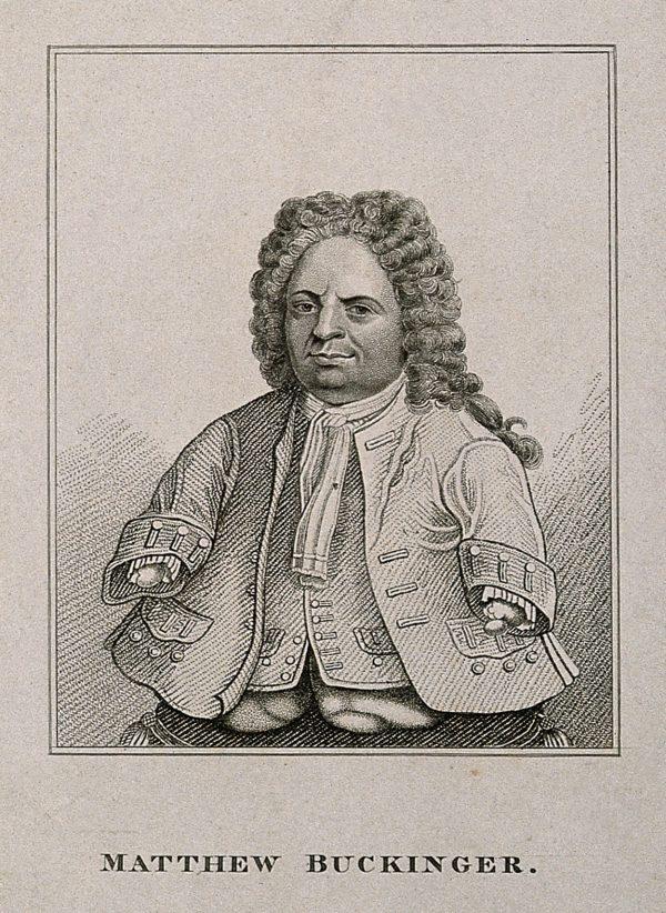 V0007015ER Matthias Buchinger, a phocomelic. Stipple engraving.